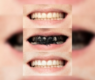 PROSZEK WYBIELAJĄCY ZĘBY SMILEBITE